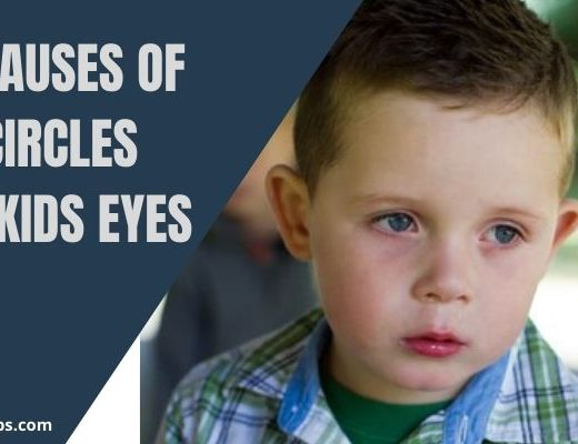 Main Causes of Dark Circles Under Kids Eyes