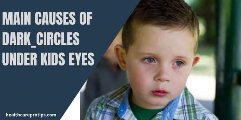 Main Causes of Dark Circles Under Kids Eyes