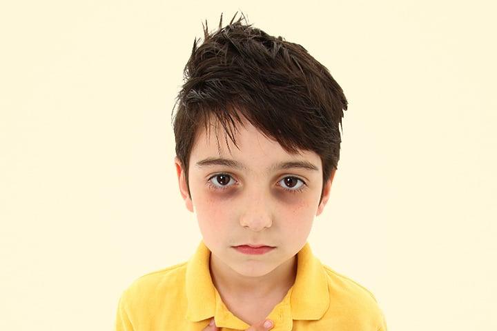 Dark Circles Under Kids Eyes