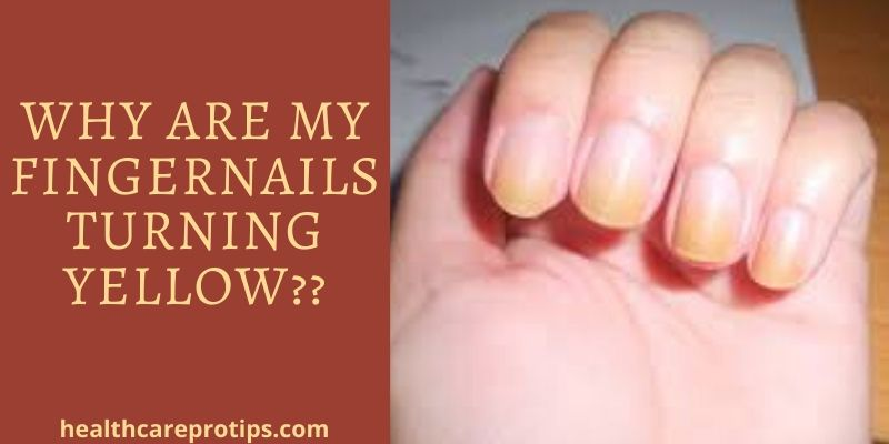 WHY ARE MY FINGERNAILS TURNING YELLOW