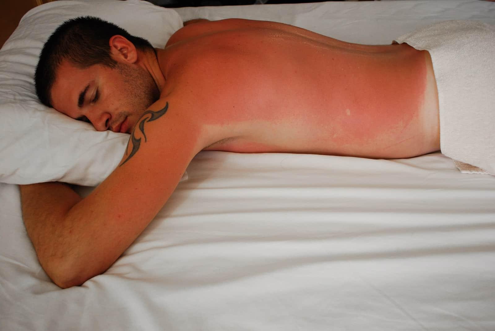 HOW TO SLEEP WITH SUNBURN EASILY