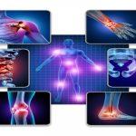 Ayurvedic Treatment for Arthritis